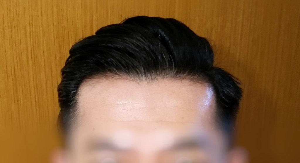 新しい髪形1