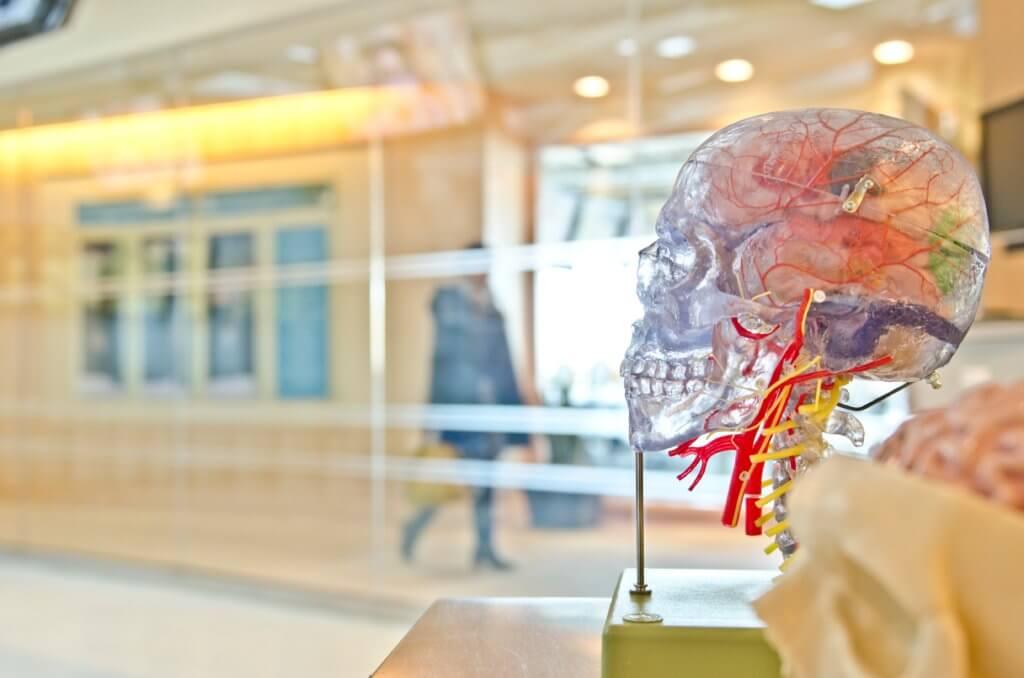 動脈解離4